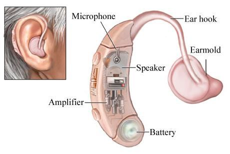 alat bantu dengar belakang telinga