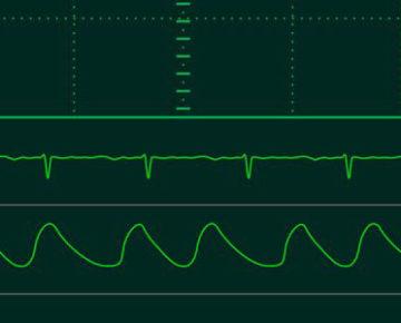 Mengetahui Parameter Pasien Monitor Paling Penting Untuk Pantau Kesehatan Pasien